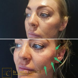 PDO Thread Lift: Before and After Care