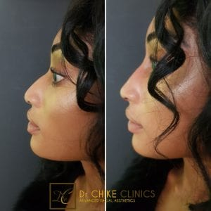 The Ultimate Guide to Rhinoplasty