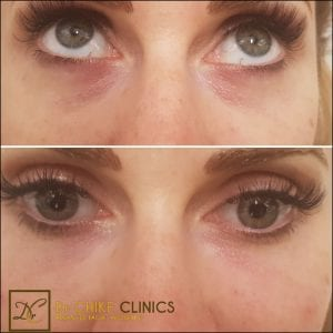 Tear Trough Filler Treatment for Under Eye Hollows: Do You Really Need it?
