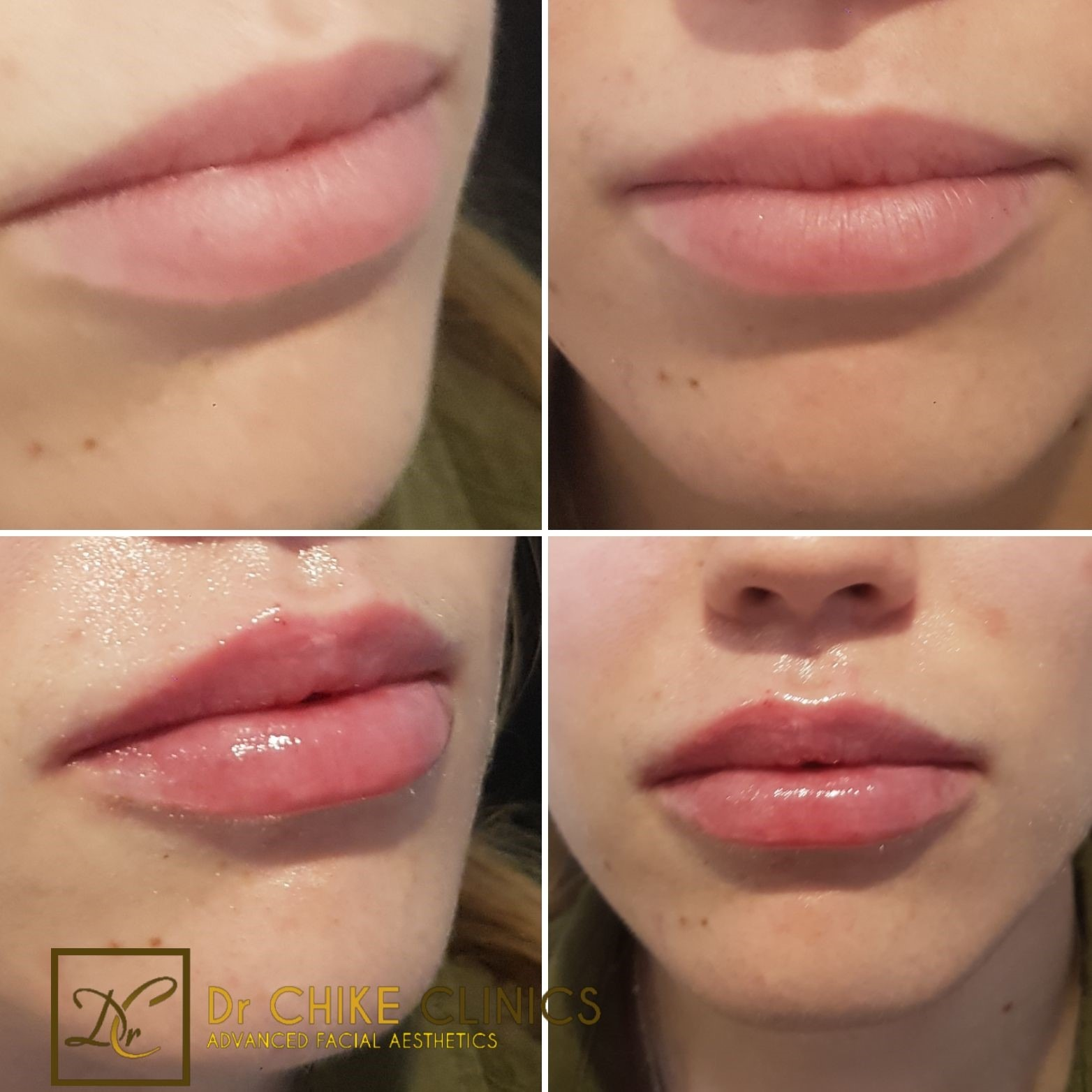 Before and After Images of Lip Fillers