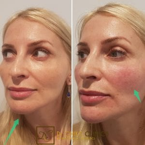 Get a Fabulous Face Lift with PDO Thread Treatment